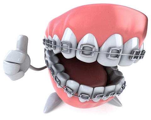 aparat dentar cu bracketi metalici