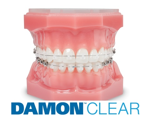 aparat dentar autoligaturant Damon Clear Ormco