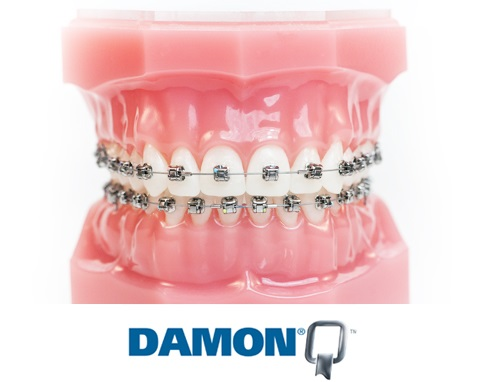 aparat dentar autoligaturant Damon Q