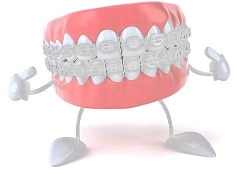 Aparat dentar ceramic dentocare