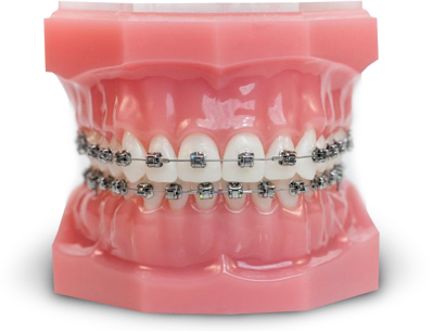 tipodont aparat dentar autoligaturant damon q