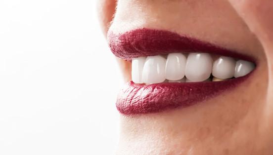 fatete dentare ceramice