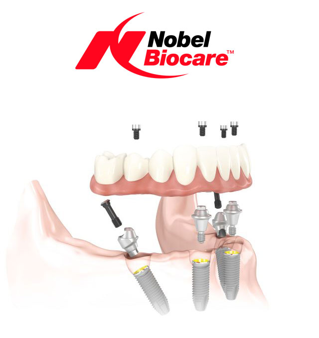 sistem all on 4 nobel biocare dantura fixa intr-o zi
