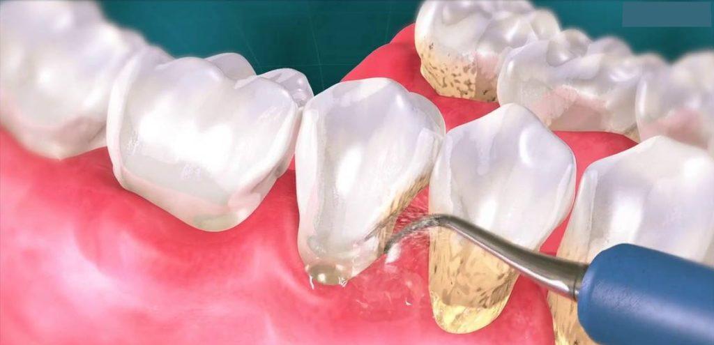 detartraj ultrasunete dinti curati