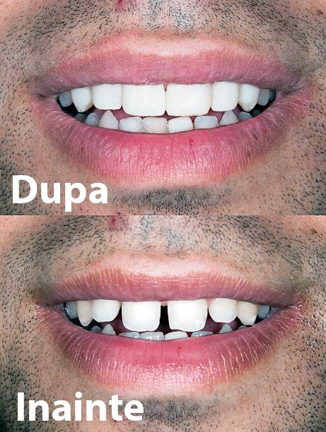 fatete dentare ceramice exemplu inainte si dupa strungareata