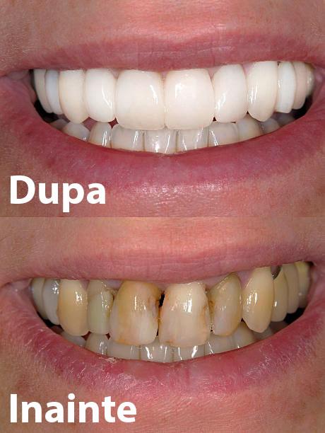 fatete dentare inainte si dupa exemplu pacienti