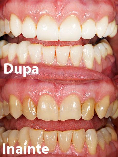 fatete dentare exemplu inainte si dupa
