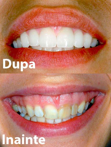 fatete dentare exemplu inainte dupa