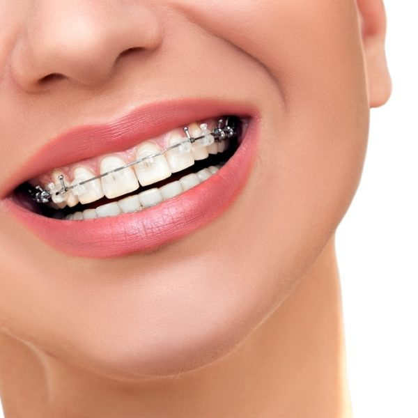 aparat dentar dentocare bucuresti aparate dentare bune