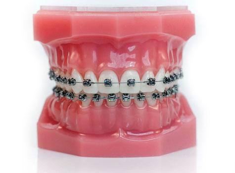 aparat dentar damon q aparat dentar autoligaturant ormco dentocare