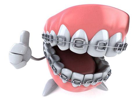 aparat dentar metalic cel mai bun pret dentocare