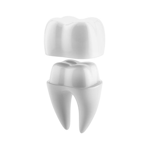 coroana dentara metalo ceramica 490 lei dentocare