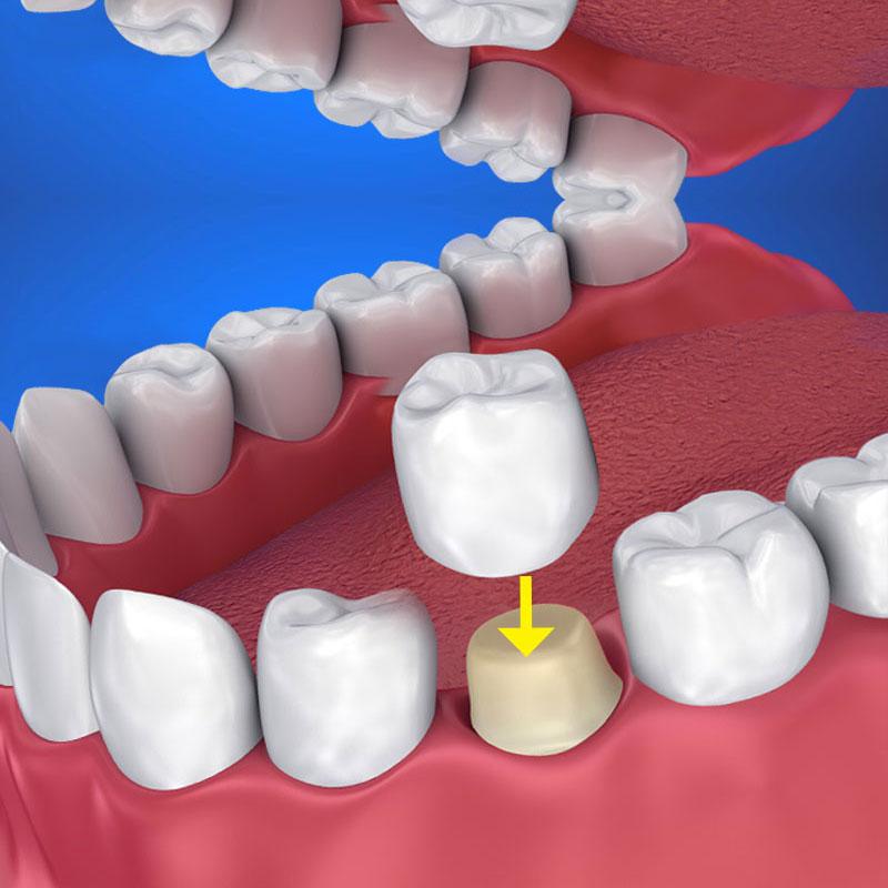 coroana dentara metalo ceramica dentocare
