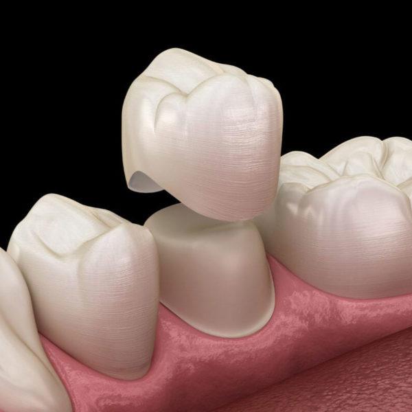 coroana dentara ceramica zirconiu dentocare