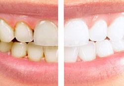 icoana albire dentara profesionala albire dinti cabinet