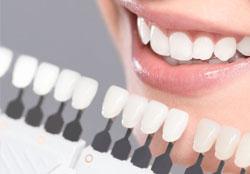 fatete dentare fatete dinti cel mai bun pret