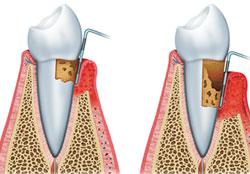 parodontologie parodontoza