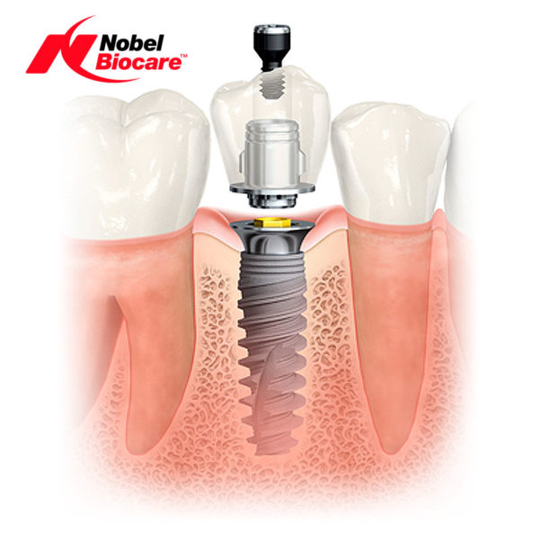 implant dentar nobel biocare cel mai bun implant dentar dentocare