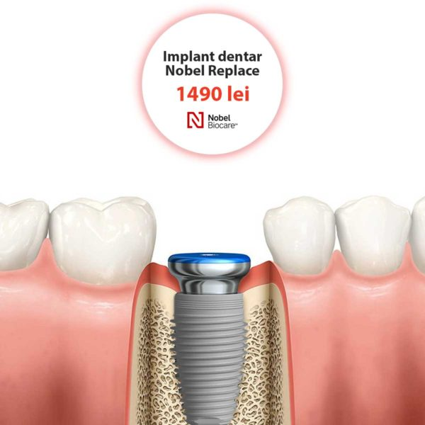 implant dentar nobel biocare replace