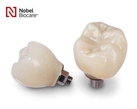 pachet coroana dentara pe implant nobel biocare