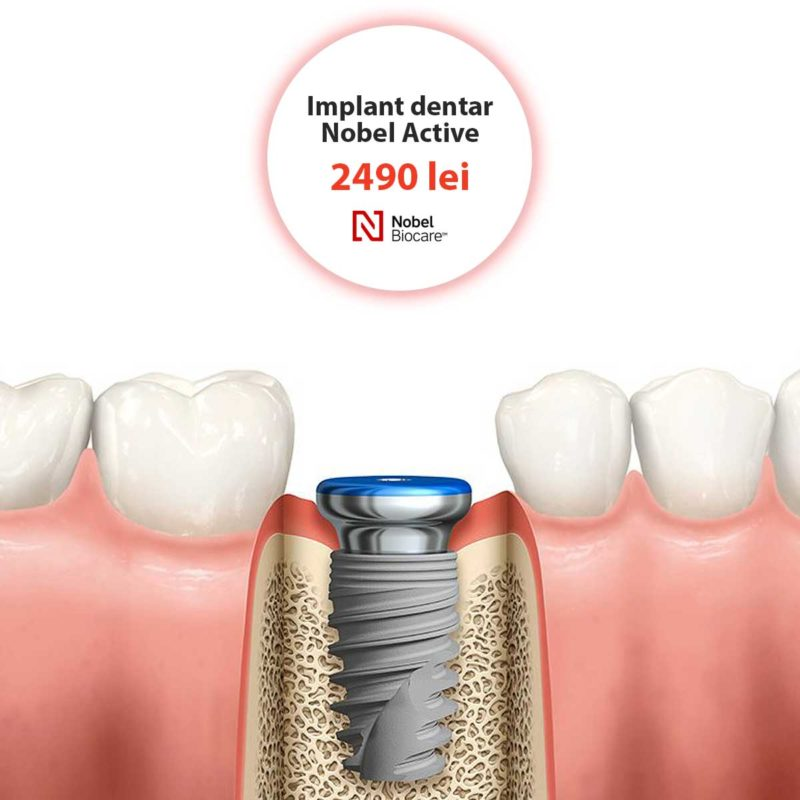 implant dentar nobel active nobel biocare