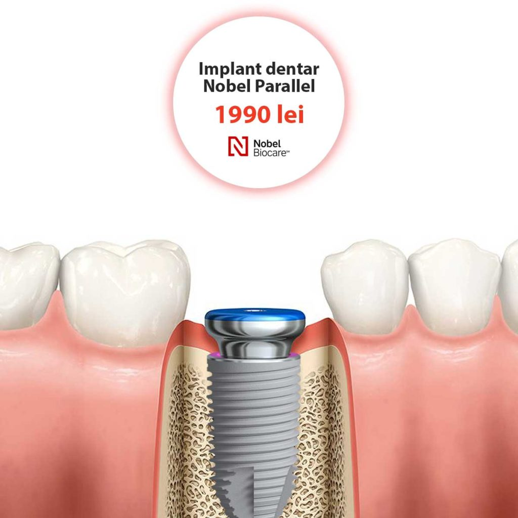 implant dentar nobel parallel nobel biocare