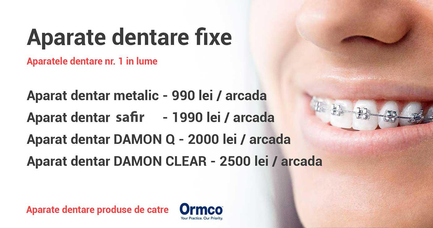 aparat dentar ormco bucuresti dentocare