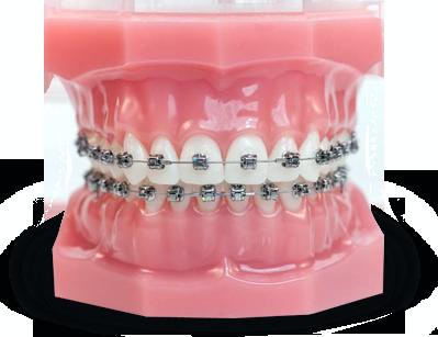 aparat dentar bucuresti dentocare