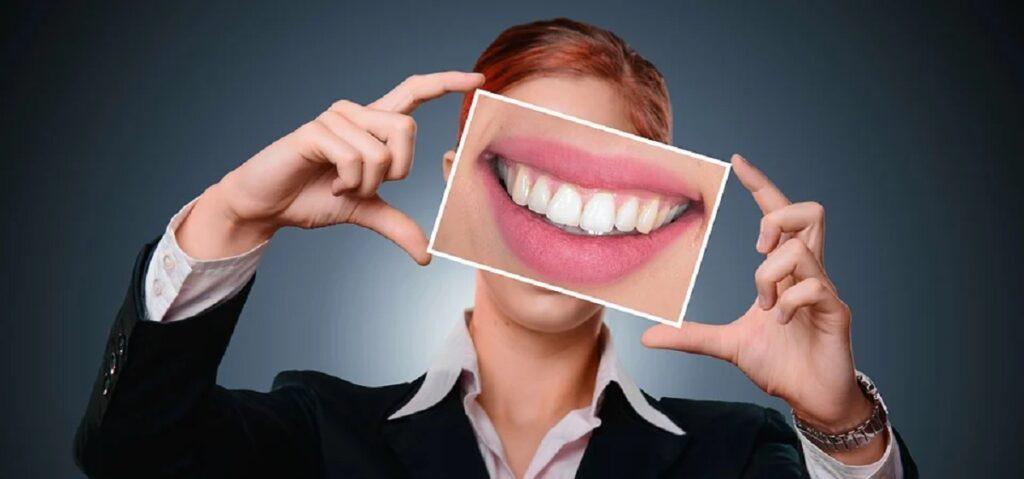 Ce sunt fațetele dentare?