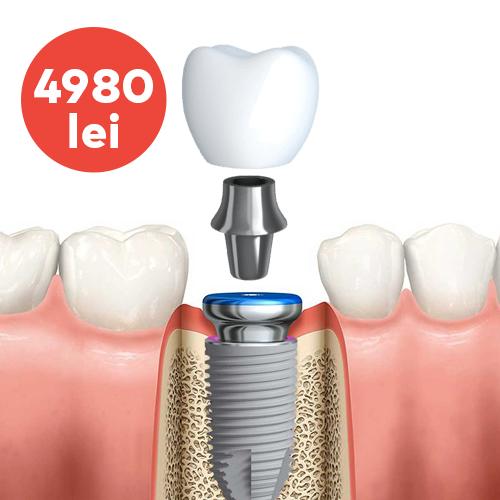 implant nobel parallel