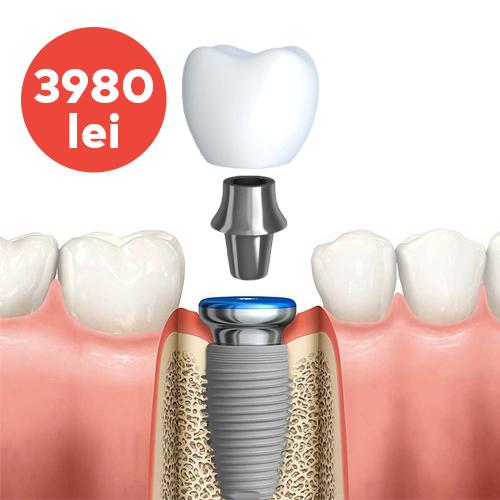 implant dentar nobel replace